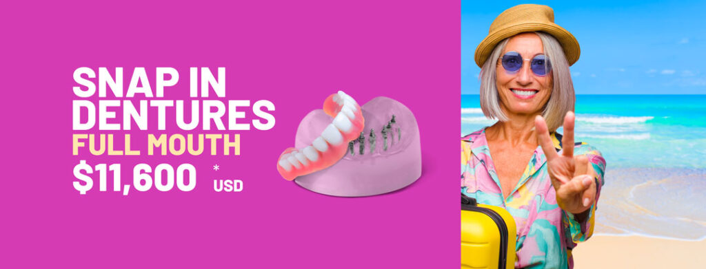 Snap_In_Dentures_Price_Cancun promo dental implants