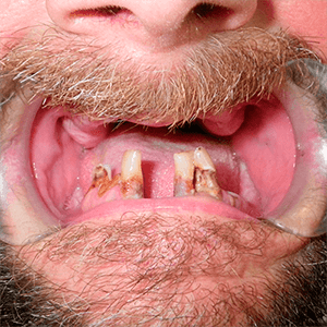 a-2-All-on-4-dental-implant-dentists-cancun-affordable-1