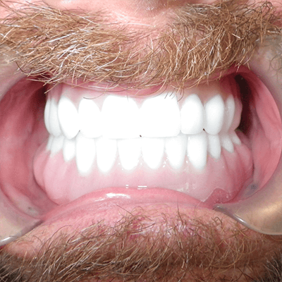 a-4-All-on-4-dental-implant-dentists-cancun-affordable
