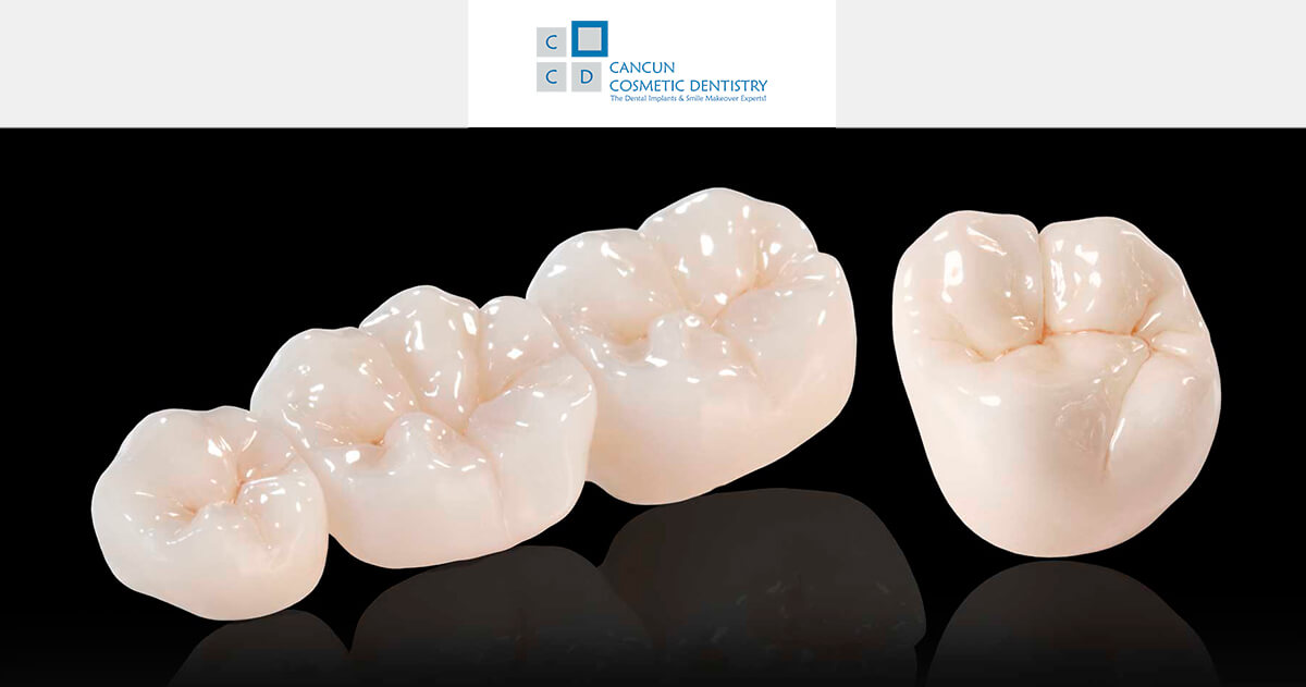 Affordable porcelain zirconia and metal free crowns