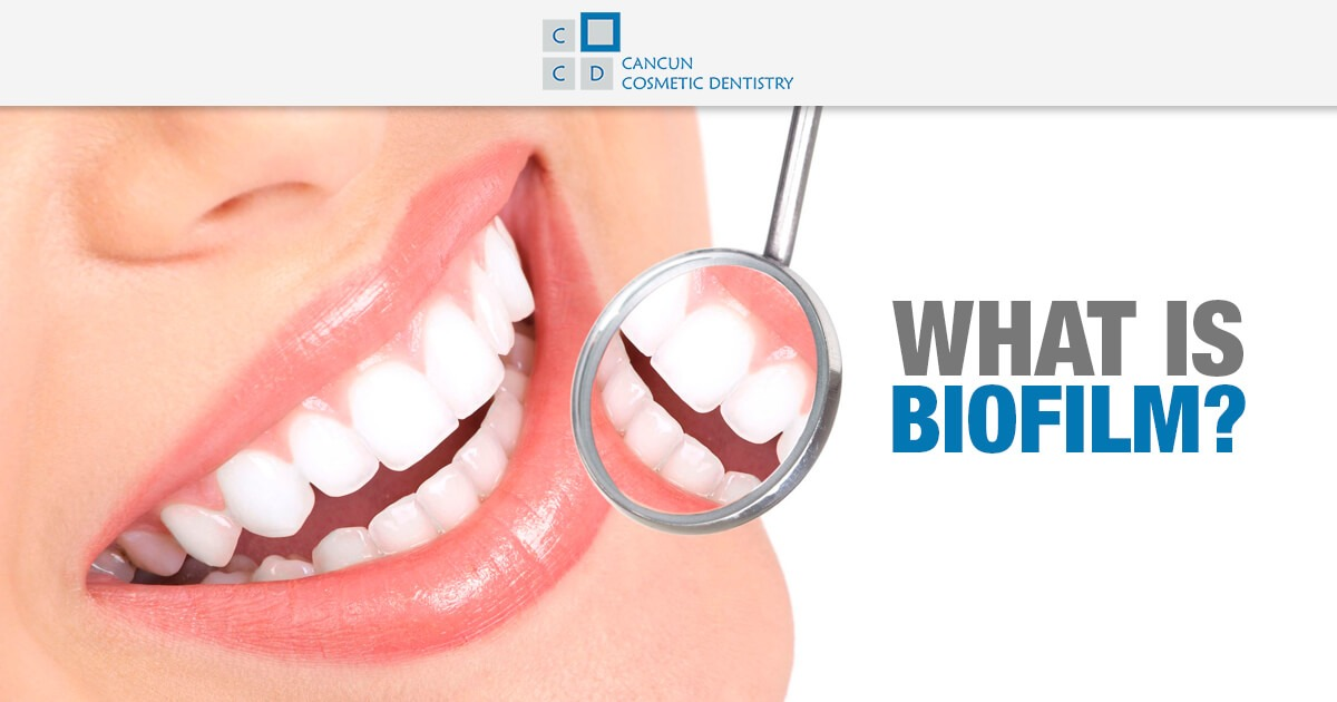 Get rid of the Biofilm on your teeth - Cancun Cosmetic Dentistry