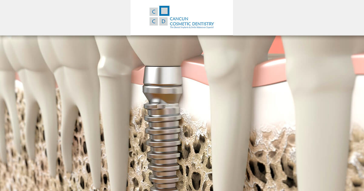 Do I need bone graft to get dental implants? - Cancun Cosmetic Dentistry