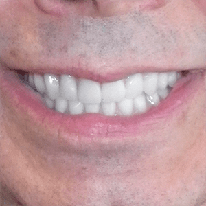 c-3-Snap-in-Dentures-dentist-cancun-affordable