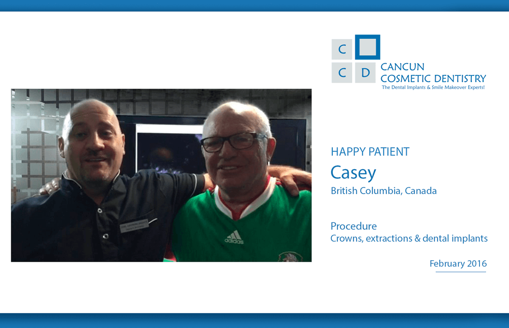Patient returned to Cancun for low cost dental implants and cosmetic dentistry