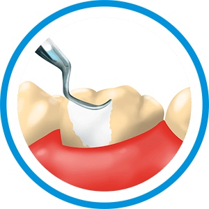 dental-cleaning-price-cancun