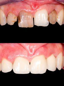 Dental crown design cost