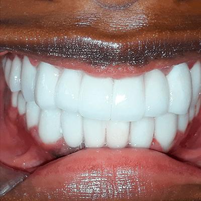 dental-crowns-makeover-ba2