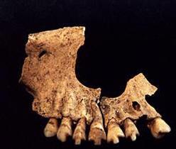dientes ixtonton