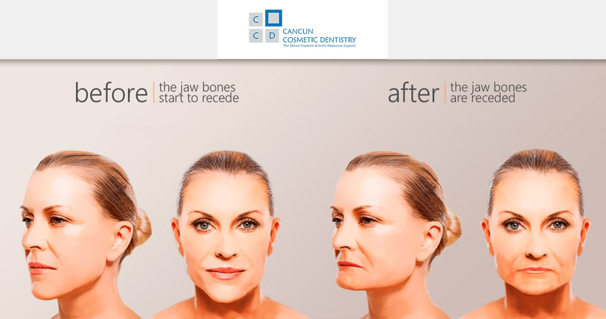 Prevent facial collapse and bone loss with dental implants in Cancun Cosmetic Dentistry