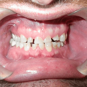 h-2-dental-crowns-dentist-cancun-affordable