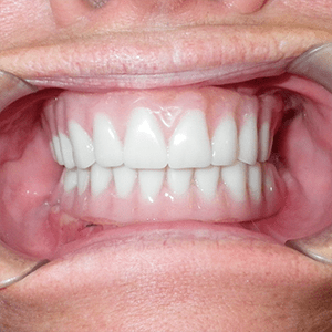 i-4-Snap-in-Dentures-dentist-cancun-affordable