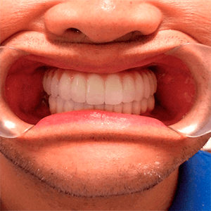 j-4-All-on-4-dental-implant-dentists-cancun-affordable-1