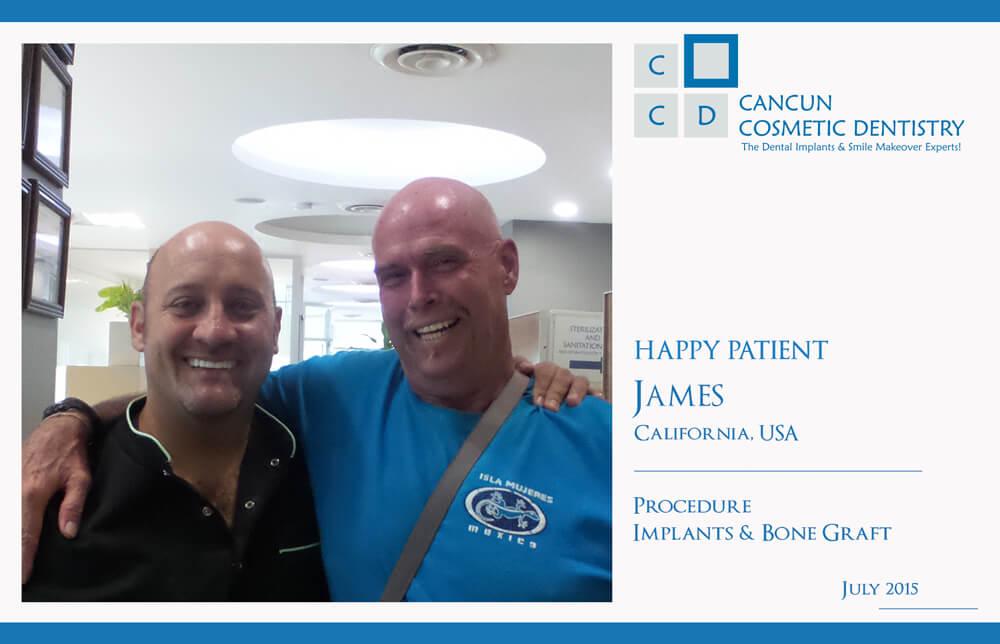 Cancun Cosmetic Dentistry review bone graft dental implants flipper