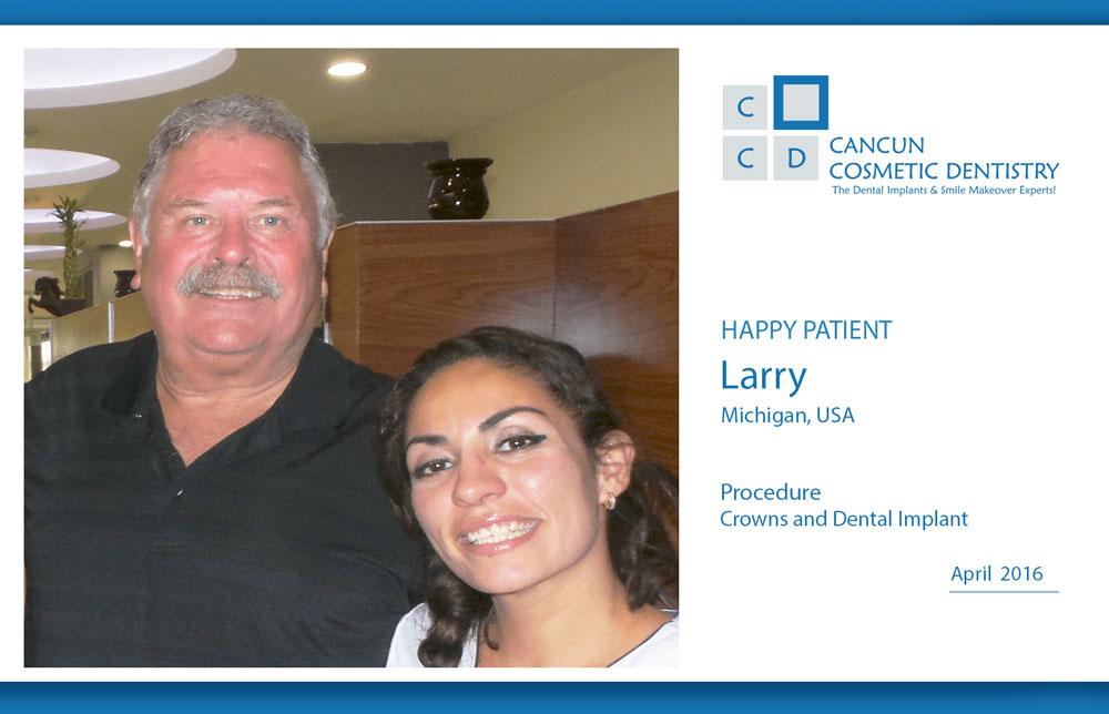 larry-dental-implants-in-cancun-porcelain-crowns-1030x664