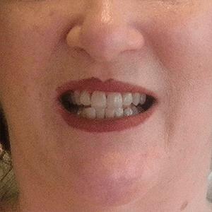 m-1-dental-crowns-dentist-cancun-affordable
