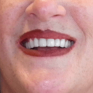 m-3-dental-crowns-dentist-cancun-affordable