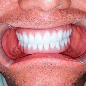 mini-implant-Snap-in-Dentures-cancun-cosmetic-dentistry-after-james