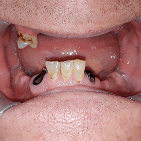 mini-implant-Snap-in-Dentures-cancun-cosmetic-dentistry-before-james