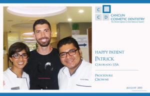 SMile makeover Patrick cesar yadira cancun cosmetic dentistry