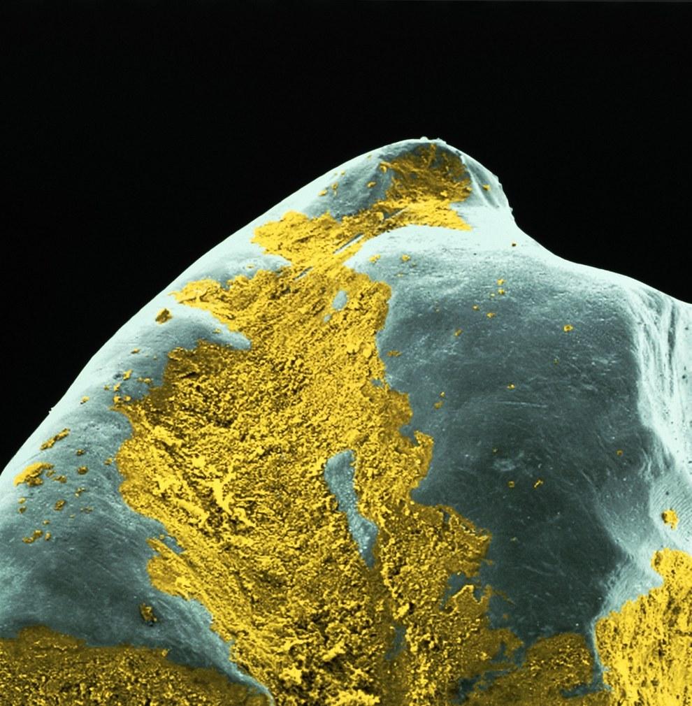 Microscopic photo of plaque
