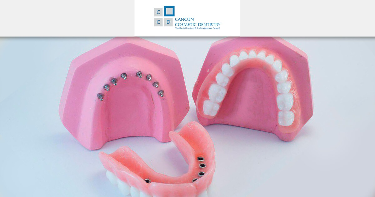 What's the procedure for Snap in Dentures?