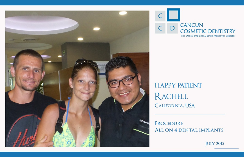 All on 4 Dental Implants Cancun Cosmetic Dentistry Review