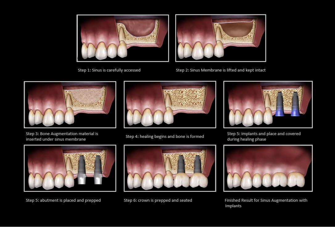 sinus lift process with dental implants in cancun