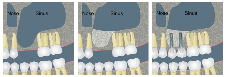 Sinus lift and Dental Implants in Cancun