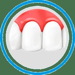 Dental makeovers