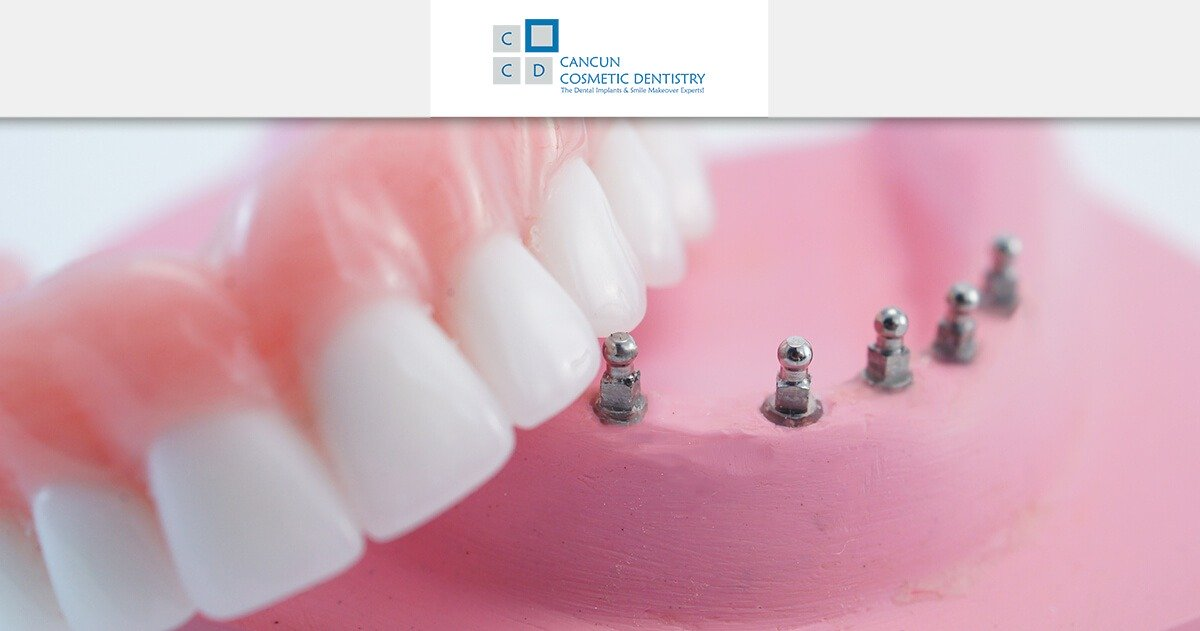 How long it takes to get Snap in Dentures? - Cancun Cosmetic Dentistry