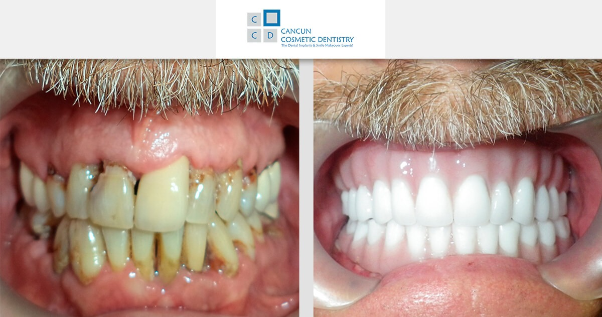 The best Snap in Dentures solution for your smile in Cancun!