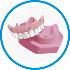 snap-in-dentures-save-60