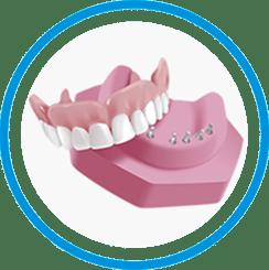 snap-in-dentures-save-60