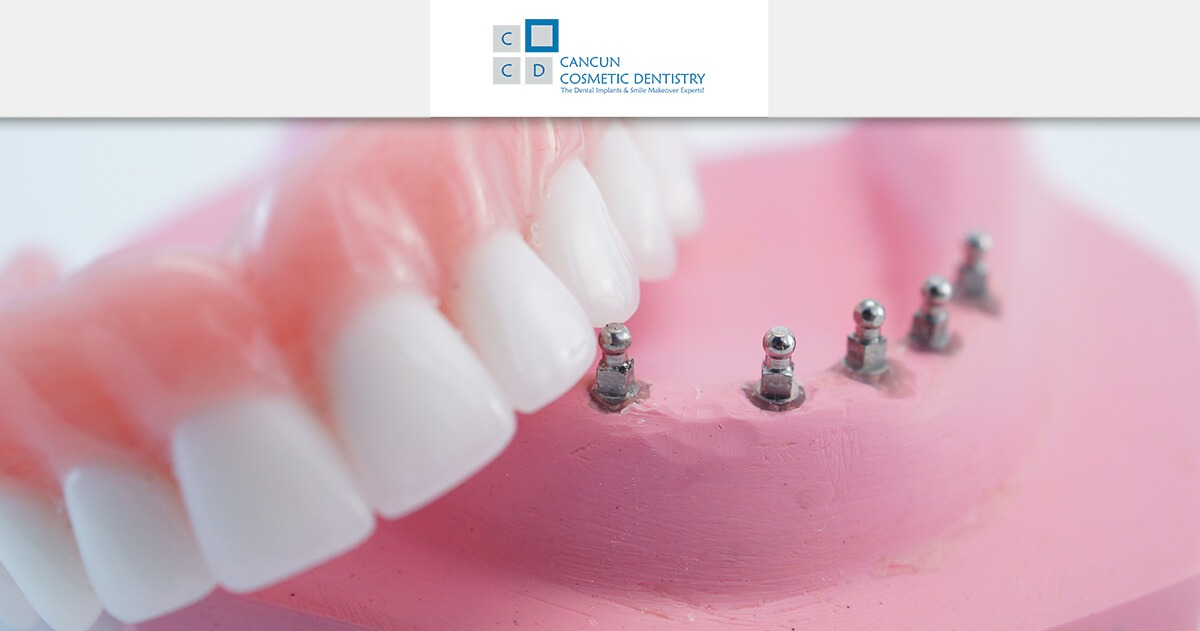 Snap in Dentures dental problem solution in Cancun