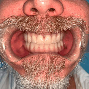 snaps2-4-snap-in-dentures-implants-cancun
