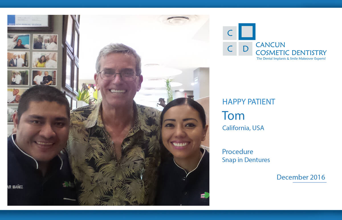 Smile makeover with mini implant snap in dentures in Cancun