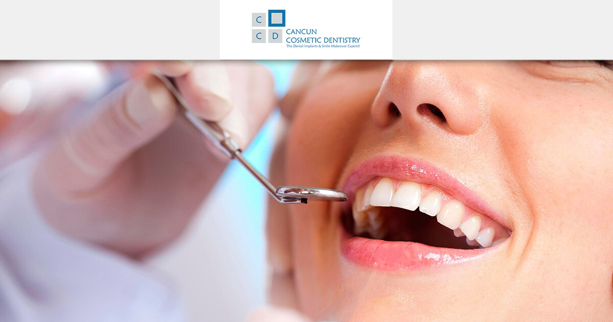 5 reasons why you should choose Cancun Cosmetic Dentistry