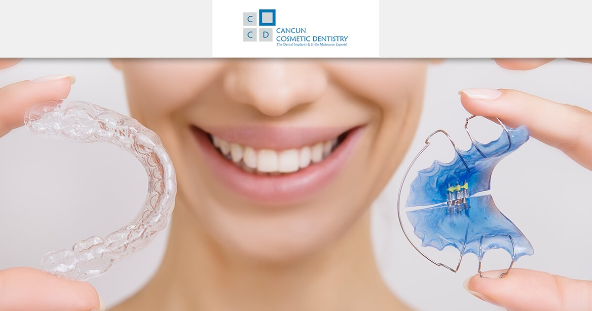 What are dental retainers? - Orthodontist in Cancun Cosmetic