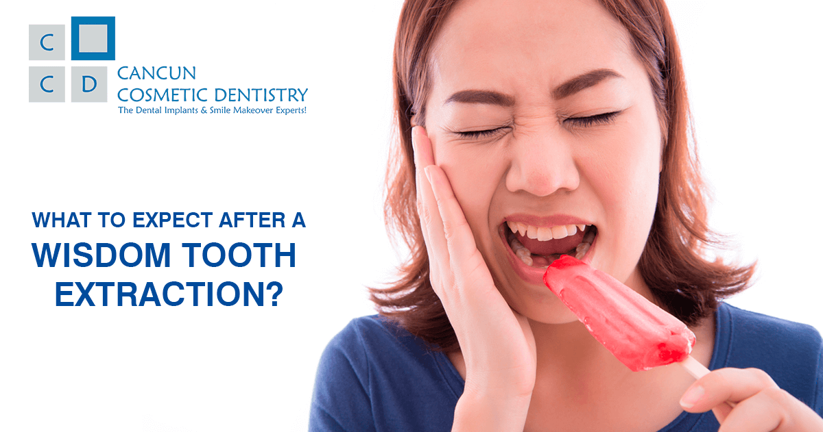 Wisdom Tooth Extraction Surgery in Cancun
