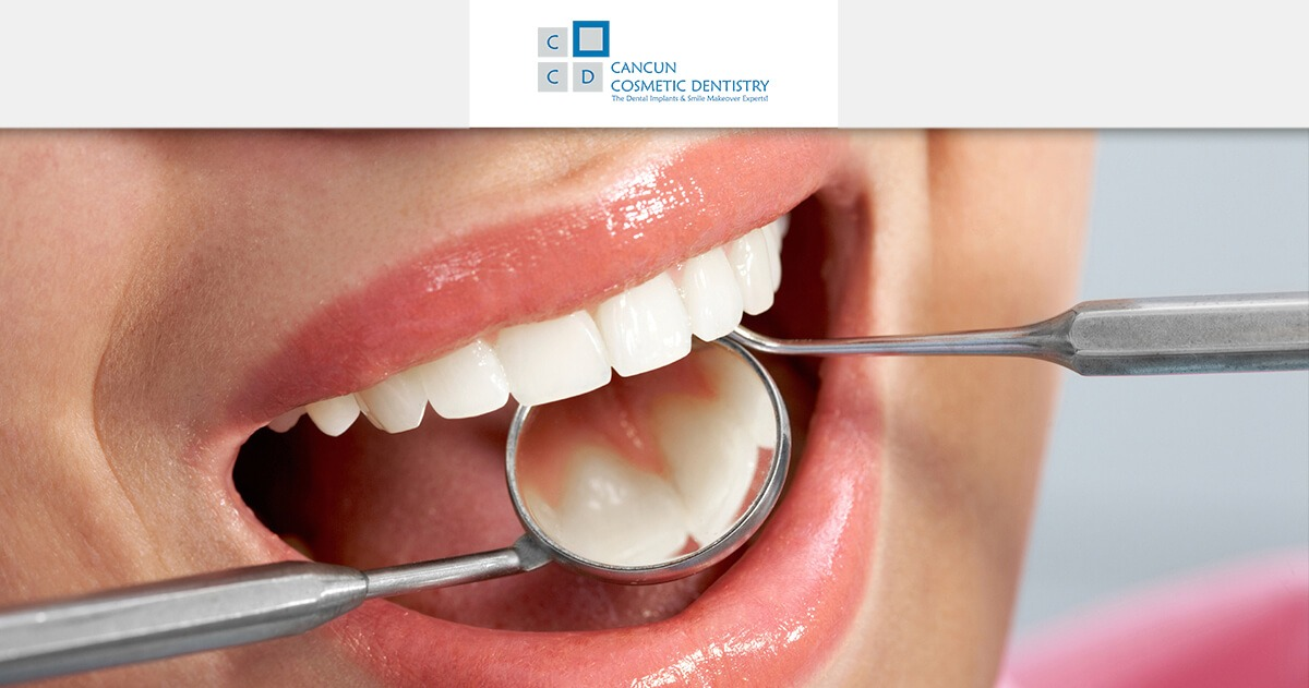 Affordable white dental resin fillings in Cancun Cosmetic Dentistry