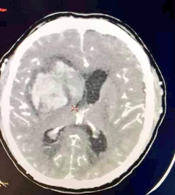 placa cerebral