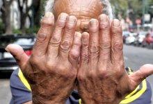 Photo of México: 40% con artritis reumatoide; mayoría en estados de la península