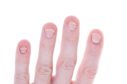 Fingernails Treat Psoriasis