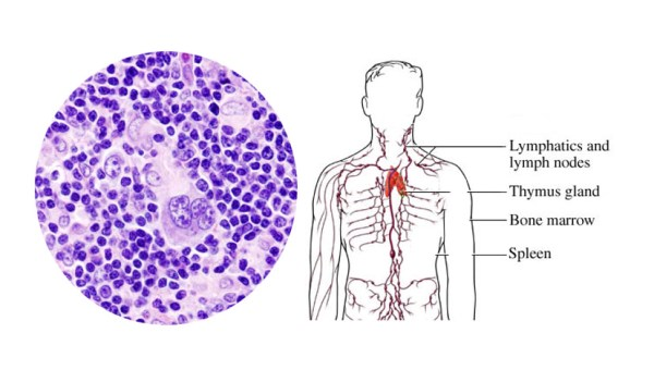 Lymphoma Types Causes Symptoms Diagnosis Treatment