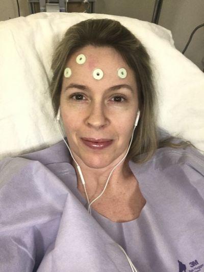 BEFORE Brain Surgery Selfie