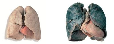 Non-smokers lungs vs Smokers lungs