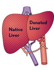 liver_clip_image003