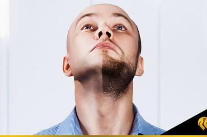 Aumento de trasplantes de barba en el 2021