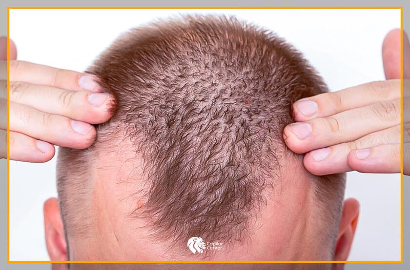 ¿En qué otras áreas se puede aplicar los pelos corporales?