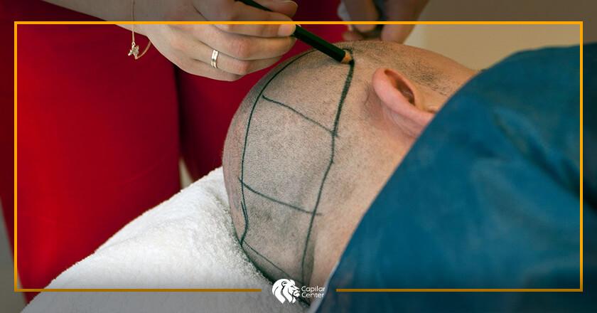 ¿Cuál es la zona donante para el Implante de Barba?